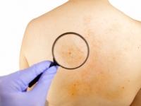 Magnifying glass examining skin
