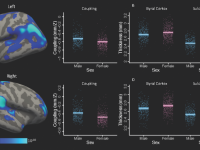 Brain scans with bar charts