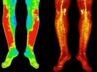 Scans of legs showing disease