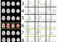 brain scans next to charts of brainwaves